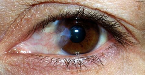 Pterigium en los ojos