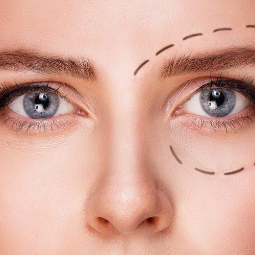 Cirugía Plástica Ocular – Oculoplastia